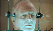 Первый этап подготовки к пересадке головы