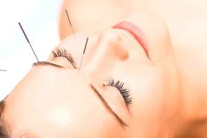 Иглорефлексотерапия: преимущества этого метода