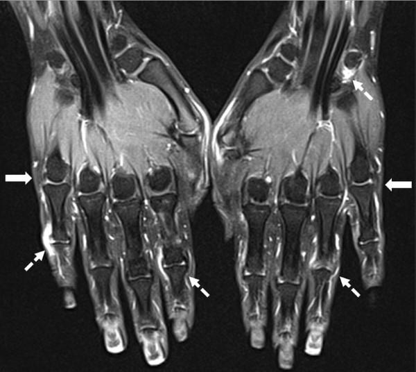 Когда необходимо делать и что покажет МРТ кисти
